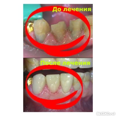 Реставрация зубов цена краснодар